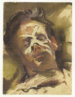 A portrait of a Far East prisoner of war bandaged nose and bruised face laying down, recuperating from a beating.