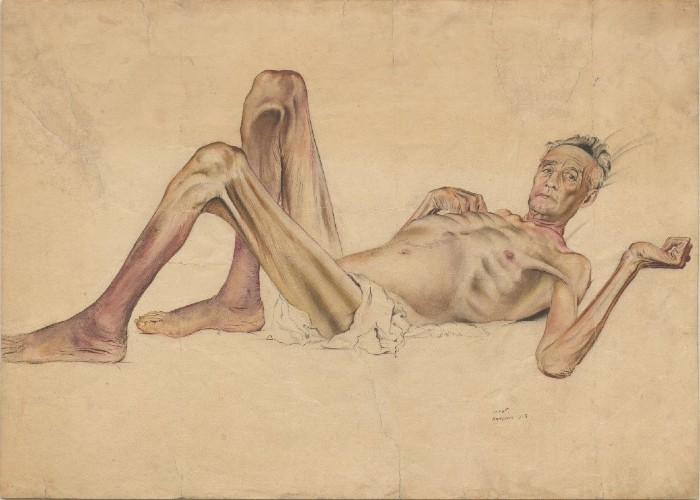 Mr Stanley a Far East prisoner of war laying down showing exhaustion, emaciation and medical neglect.