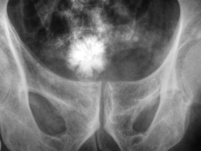 An x-ray of a Jackstone urolith in the bladder