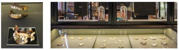 Waterloo Teeth on Display (desk cabinet) at the VGM